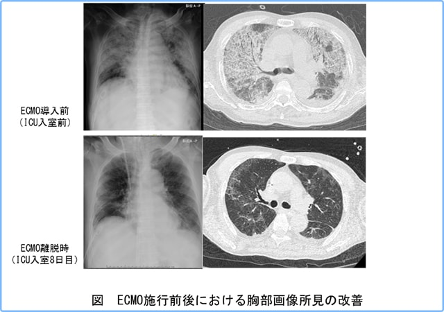 図 ECMO施工前後における胸部画像所見の改善